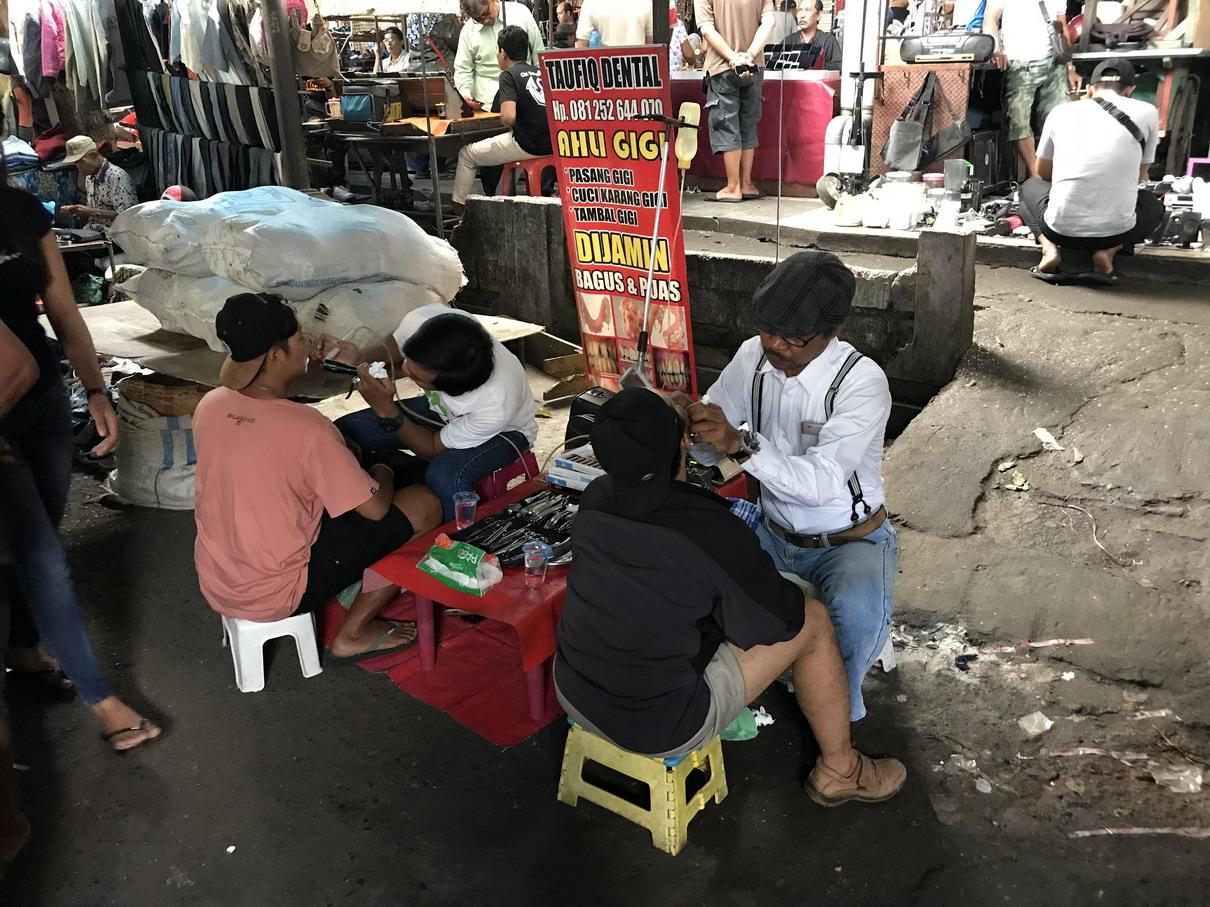 Bali fogorvos a piacon